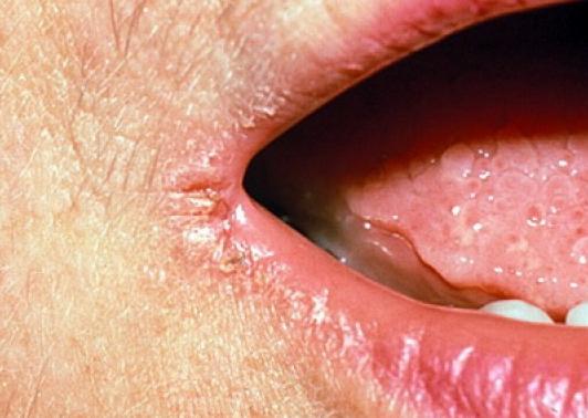 трескаются губы в уголках рта