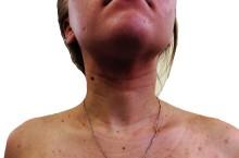 Атопический дерматит: причины, симптомы и лечение