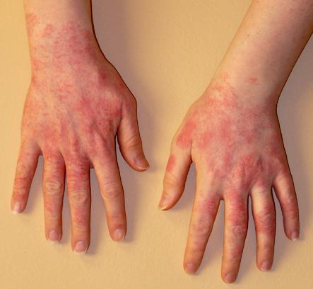 Атопический дерматит военкомат