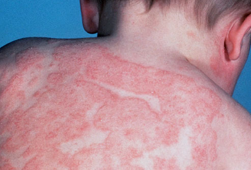 Атопический дерматит это на всю жизнь?