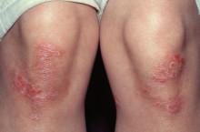 Псориаз: лечение в домашних условиях