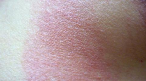 солнечный дерматит у взрослых