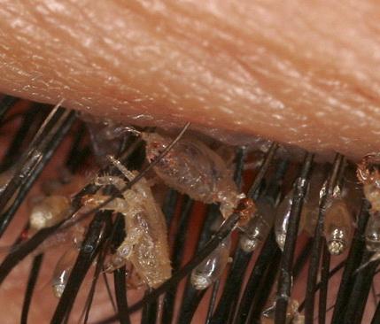 любят паразиты в организме человека