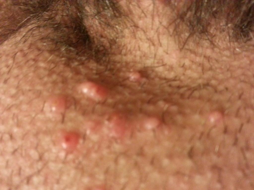 Воспаление полового органа у мужчин