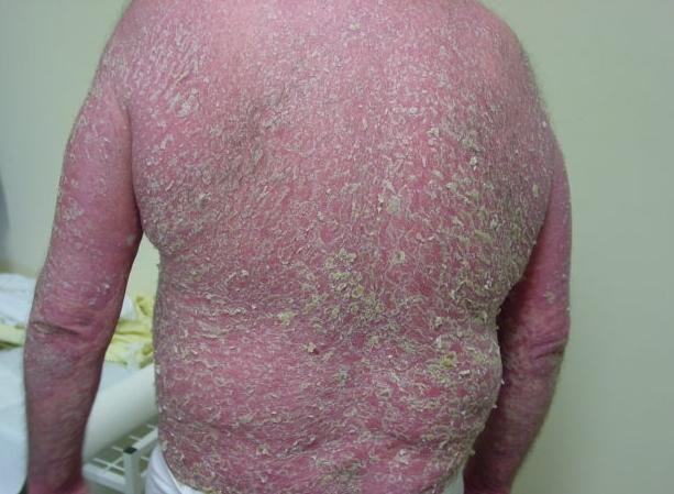 Вульгарный (бляшечный) псориаз 7 фото лечение причины симптомы и профилактика