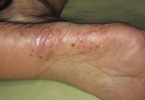 Псориаз на руках и ногах лечение