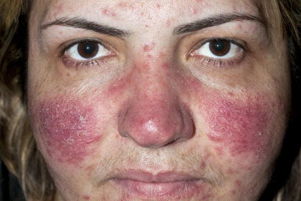 Клещи демодекс на коже лица 57
