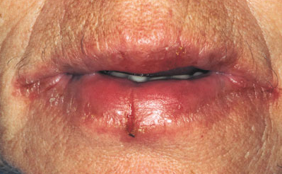 контактный аллергичский хейлит фото