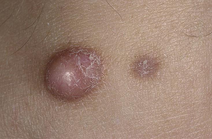 lдерматофиброма кожи
