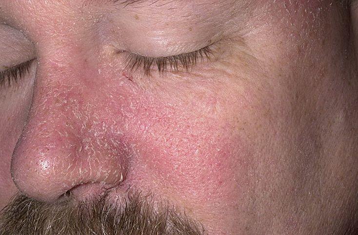 прыщи от аллергии как убрать