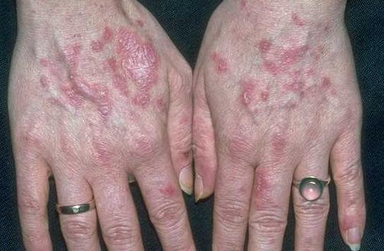 Туберкулез кожи: фото, симптомы, разновидности