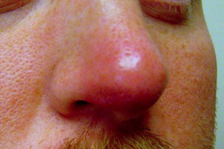 Эффективные методы лечения герпеса в носу