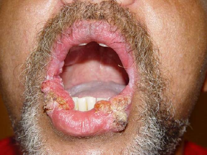 kak-lechit'-virus-papillomy-cheloveka