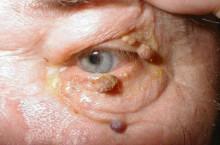 Как избавиться от папилломавируса человека?