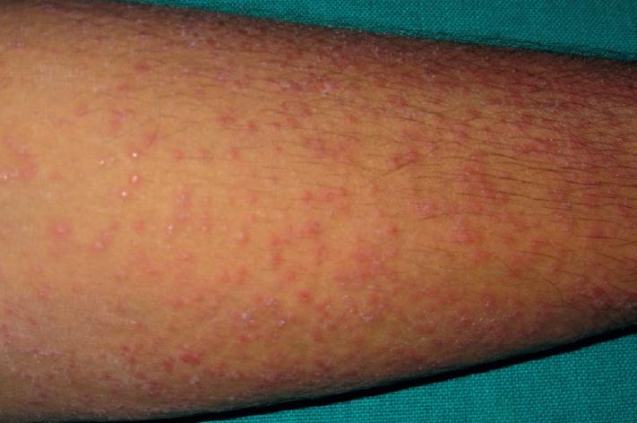 Лихеноидный туберкулез кожи фото