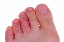 Из-за чего может появиться эпидермофития стопы?