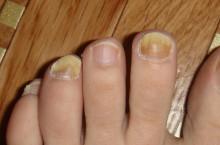 Как я лечила грибок на ногтях  ног