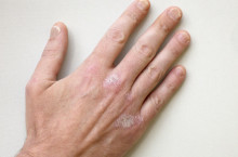 Как я живу с нейродермитом на пальцах рук