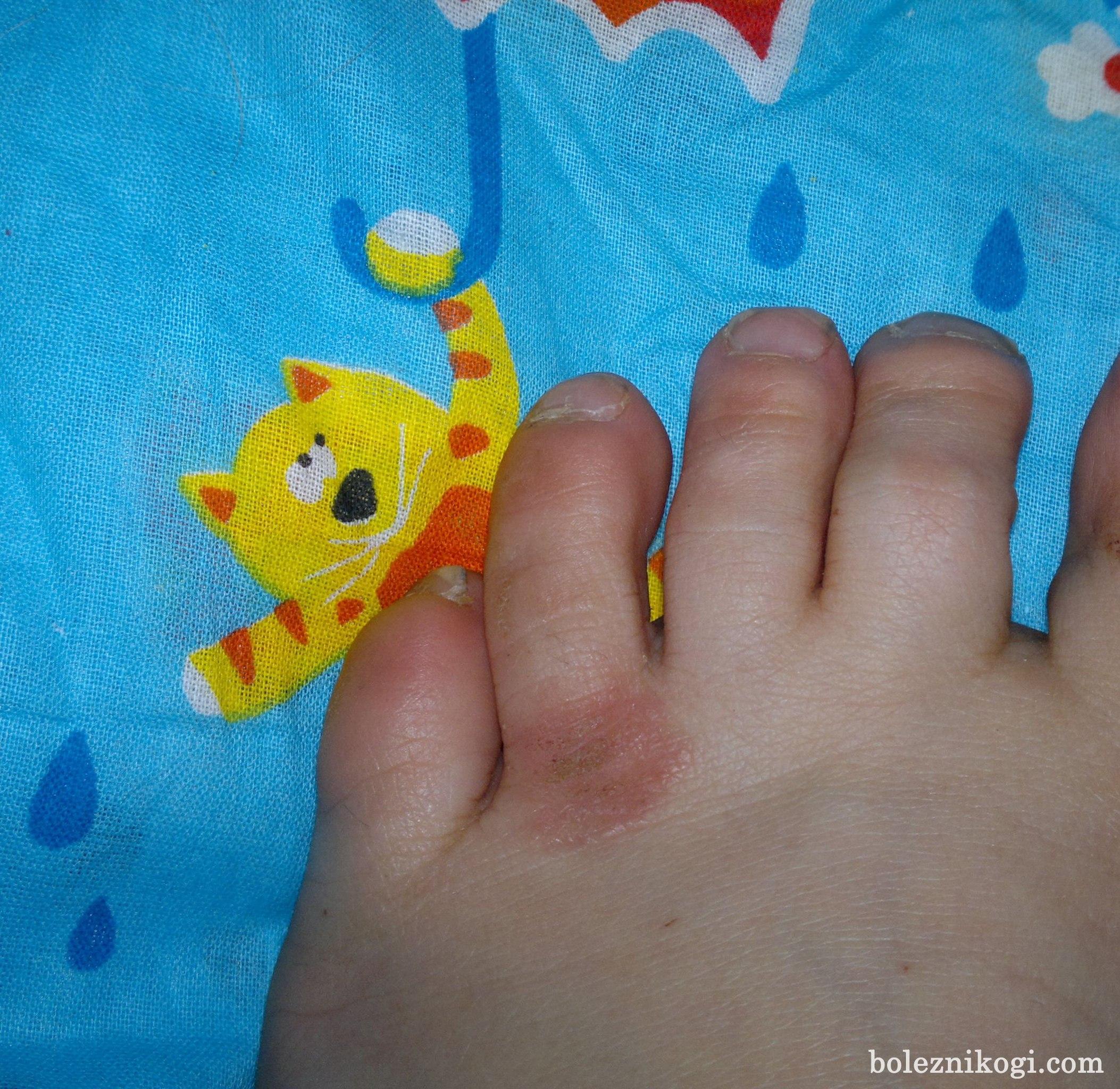 нейродермит на пальцах ног фото