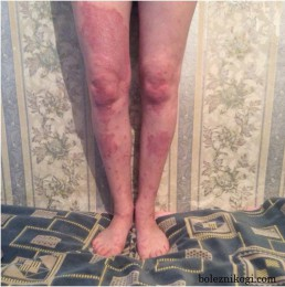 псориаз на ногах фото
