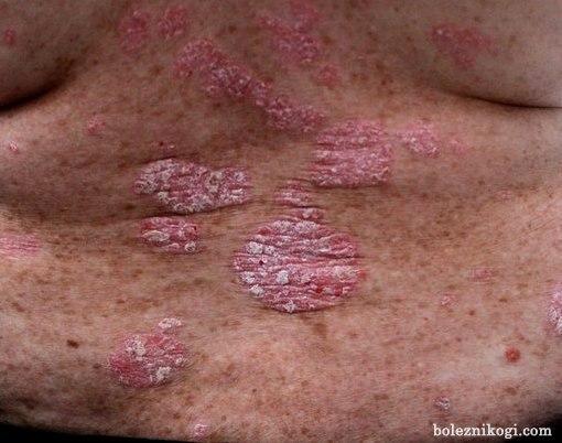 фото псориаза на спине