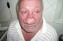 Ринофима носа: фото, причины появления и методы лечения