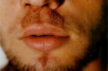 Сикоз носа: причины появления и методы лечения