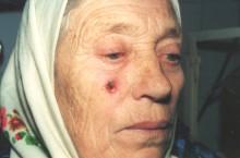 Что нужно знать про рак кожи на лице?