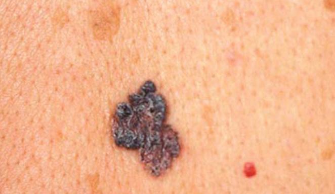 злокачественные опухоли кожи фото