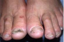 История о том, как лечить грибок ногтей чесноком