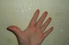 Аллергия на руках: фото, симптомы и применяемые методы лечения