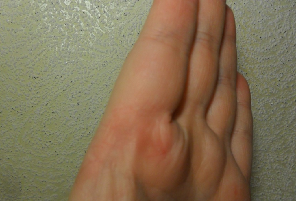 болезнь рожа на руке