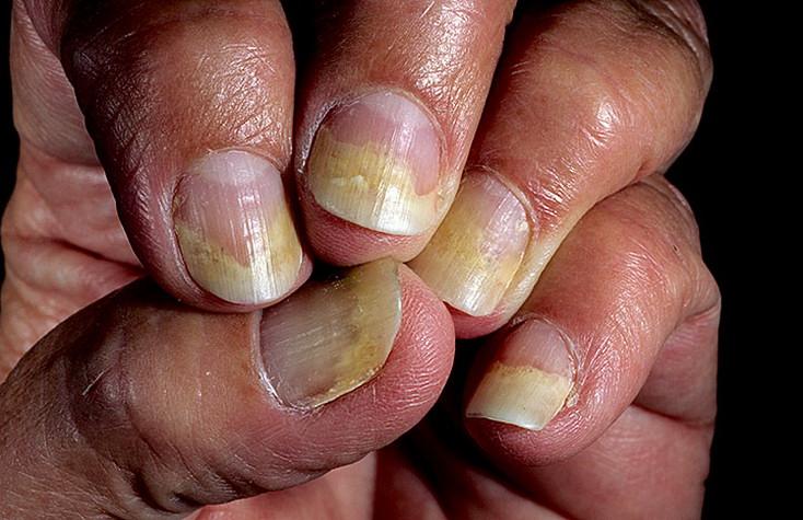 Кто самостоятельно вылечил грибок ногтей на ногах