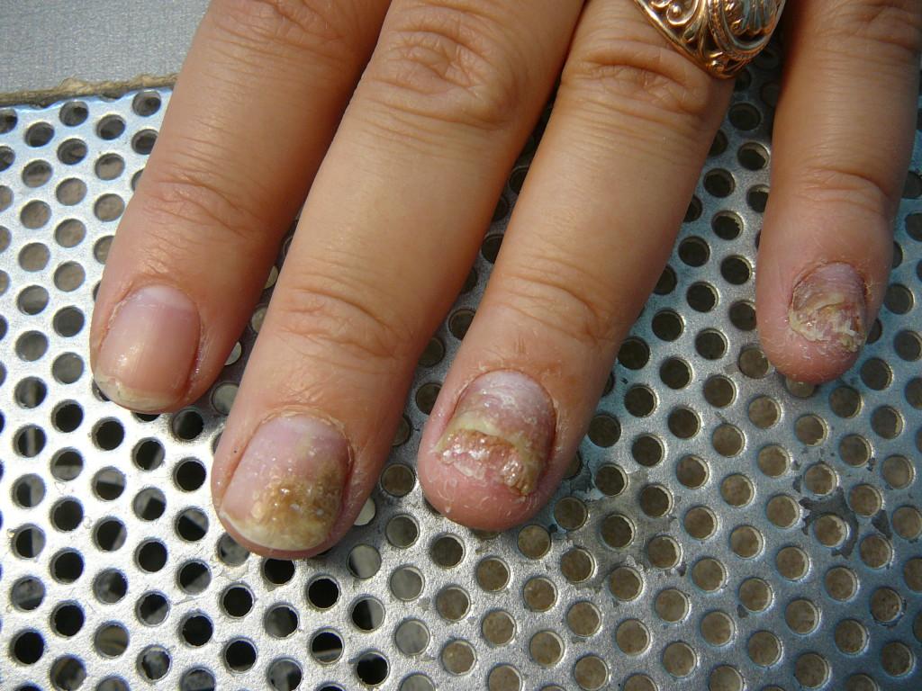 Самое хорошее средство от грибка ногтей отзывы