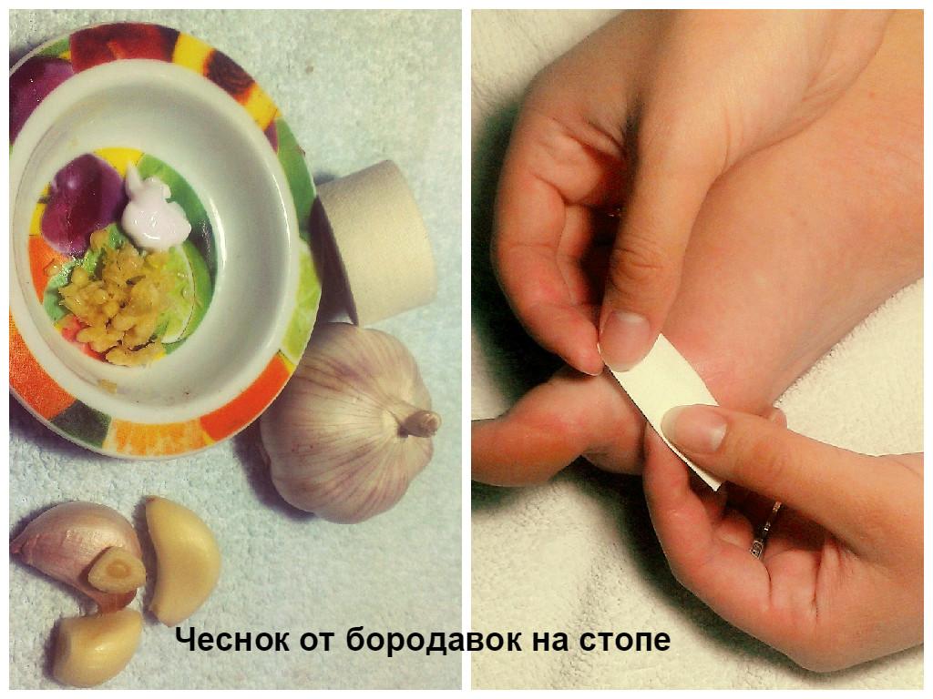 Можно ли удалять папилломы на лице чистотелом