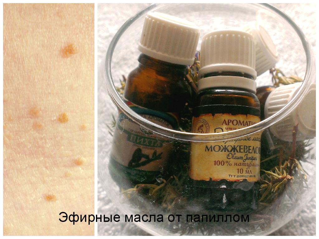 ли папилломы от паразитов