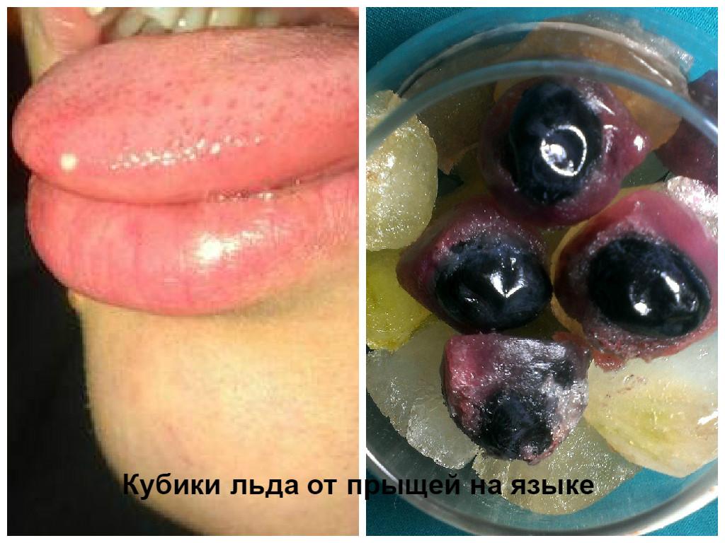 Как праавльно делать лизу языком фото 155-822