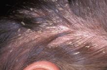 Себорея: фото, причины, симптомы и лечение