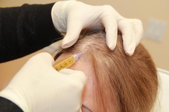 лечение алопеции уколами