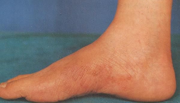 Что такое рубромикоз гладкой кожи