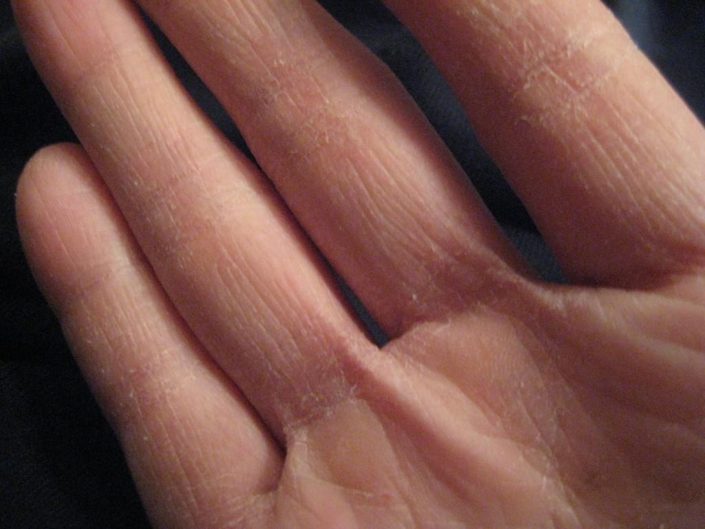 Почему трескаются и сохнут пальцы на руках