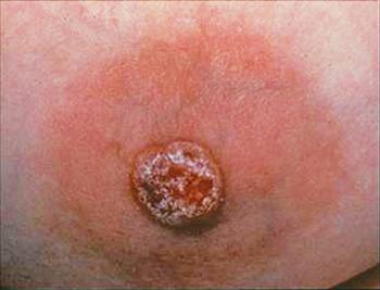 Первые признаки рака Педжета молочной железы