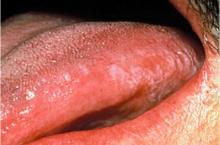 Лейкоплакия полости рта: фото, признаки, лечение