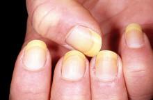 Почему желтеют ногти на руках у женщин?