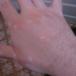 От чего появляются белые пятна на коже