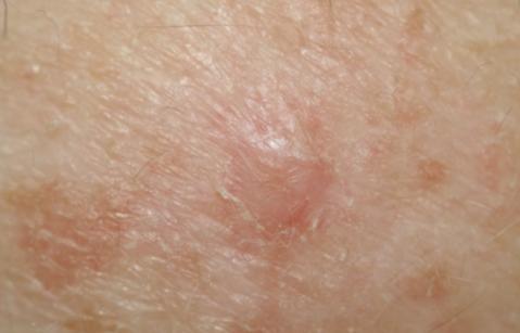 беспигментная меланома фото