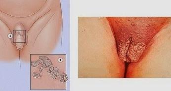 как протекает хламидиоз у женщин