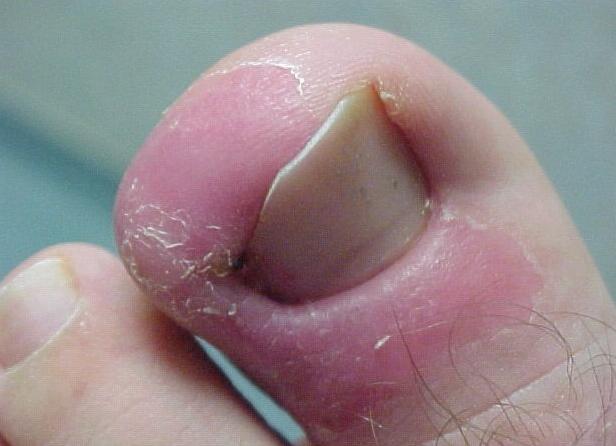 опух и покраснел большой палец возле ногтя