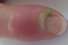 Что делать, если опух палец возле ногтя?