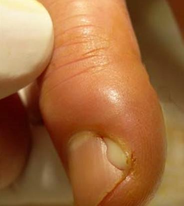 опух палец возле ногтя фото